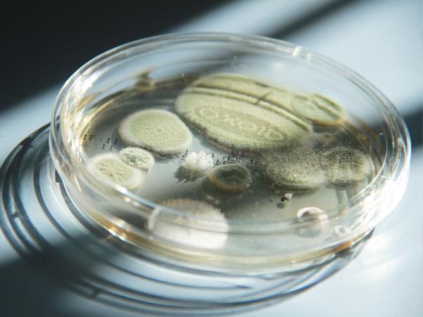 Schimmeltest - Institut für Keimanalysen und Bestimmung von Schimmelpilzen 2